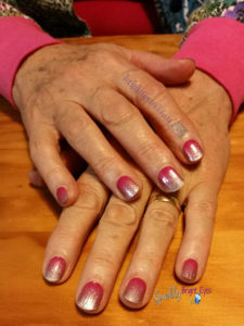 why we should look after our hands- older lady's hands